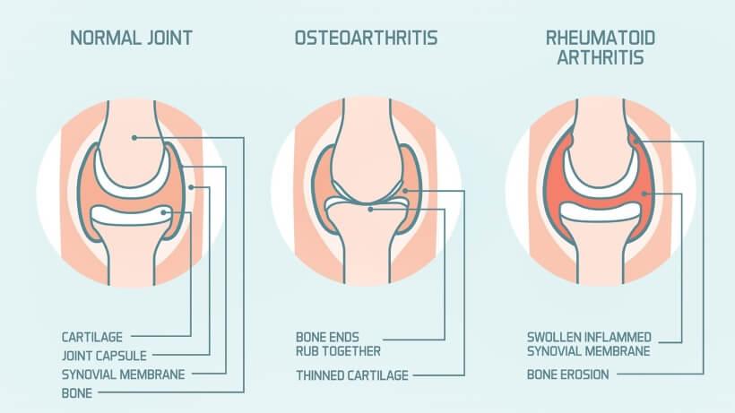 Dva lica artritisa